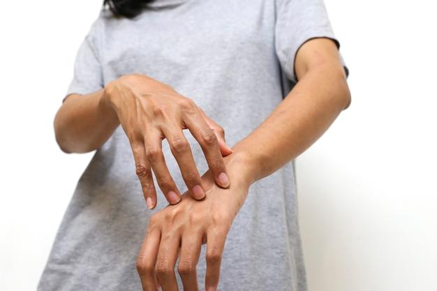 Jonge aziatische vrouw die aan jeuk op haar huid lijdt en krabt