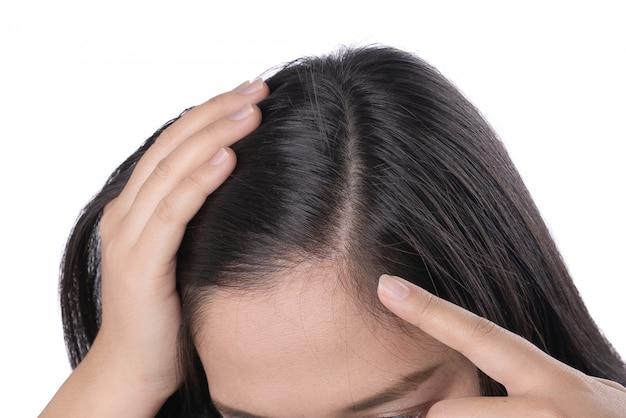 Jonge aziatische vrouwen maken zich zorgen over haarverlies, hoofd kaal, hoofdroos.