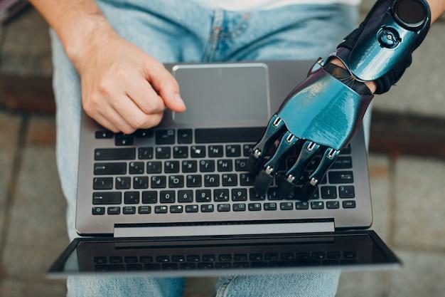 Jonge gehandicapte man met kunstmatige prothetische hand met behulp van typen op laptop computer toetsenbordtoetsen tik...