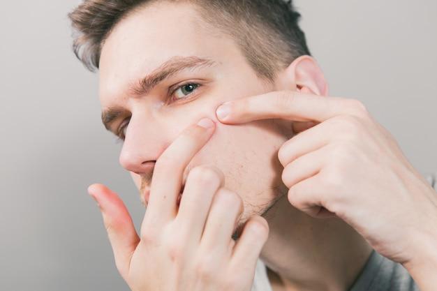 Jonge kerel duwt acne op zijn gezicht
