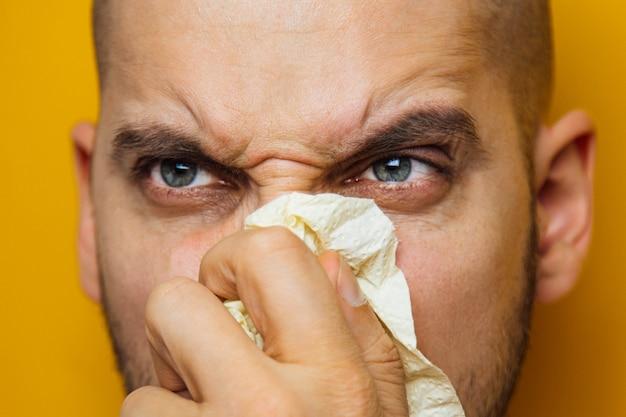 Jonge kerel ziek met een virus niest in toiletpapier dat hij in zijn handen houdt. allergieseizoen, pandemie, verkoudheid. ontevreden gezichtsuitdrukking.
