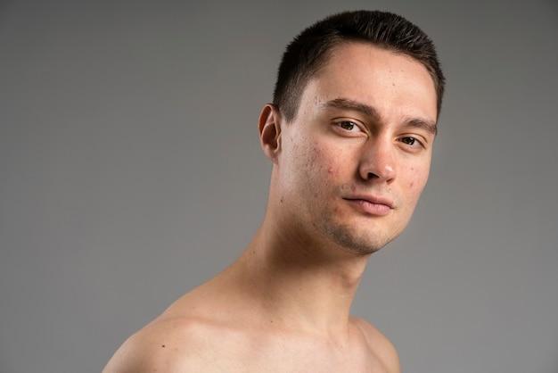 Jonge knappe man met acne