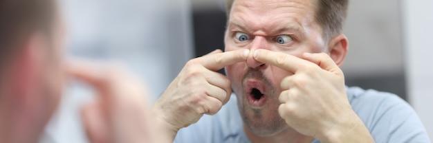 Jonge man kijkt in de spiegel en drukt puistjes op zijn neus. gezichtsverzorging van de huid thuis concept.