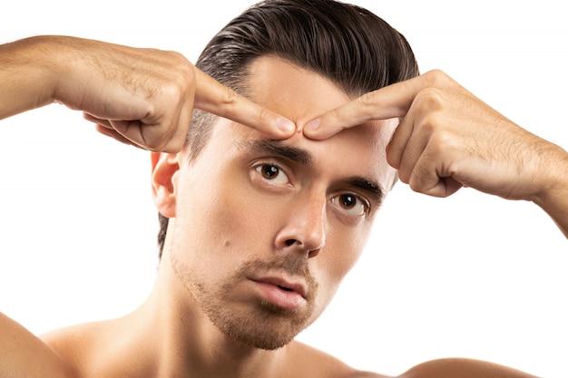 Jonge man knijpt puistje op zijn voorhoofd