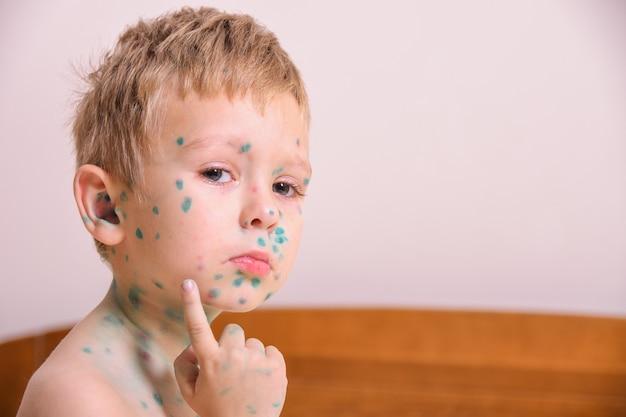 Jonge peuter, jongen met waterpokken. ziek kind met waterpokken. varicella-virus of waterpokken bubbeluitslag op het lichaam en gezicht van het kind.