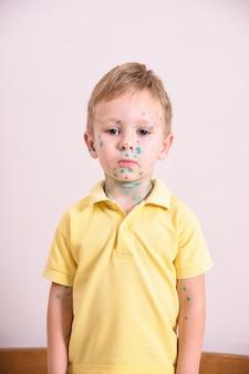 Jonge peuter, jongen met waterpokken. ziek kind met waterpokken. varicella-virus of waterpokken bubble huiduitslag op het lichaam en gezicht van het kind.