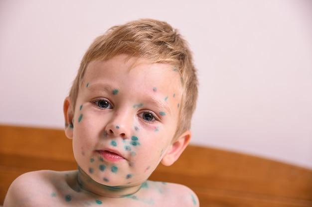 Jonge peuter, jongen met waterpokken. ziek kind met waterpokken. varicella-virus of waterpokkenbubbeluitslag op het lichaam en gezicht van het kind.
