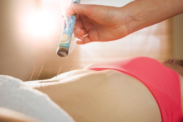 Jonge vrouw die acupunctuurbehandeling krijgt