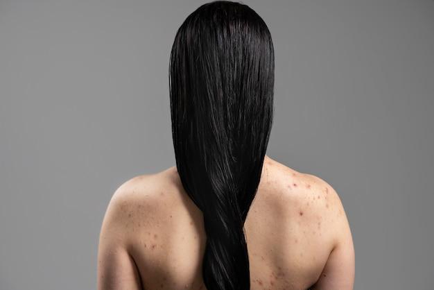 Jonge vrouw die de acne op haar schouders toont