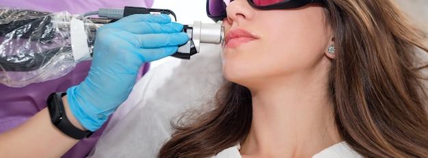 Jonge vrouw die epilatie van de laserhaarverwijdering op gezicht in salon ontvangt. snor laser ontharing behandeling in laserkliniek