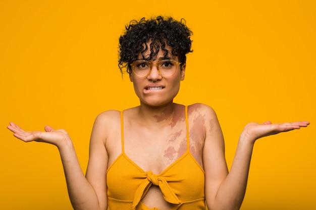 Jonge vrouw met huidgeboorteteken verwarde en twijfelachtige schouders ophalen
