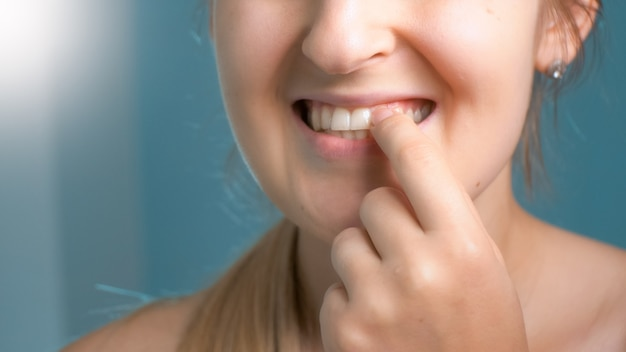 Jonge vrouw plukt vuil en voedselresten van haar tanden met vingers.