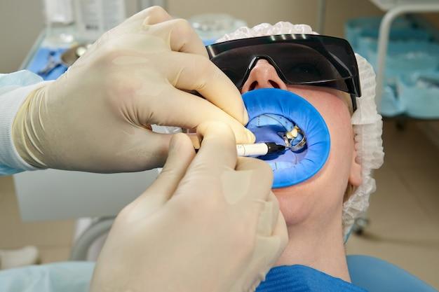 Jonge vrouw tandheelkundige behandeling krijgt bij tandarts kantoor met een tandheelkundige rubberen dam bescherming