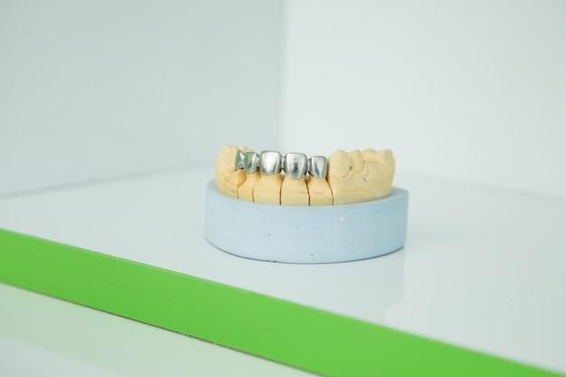 Kaakmodel op de tafel van de tandarts