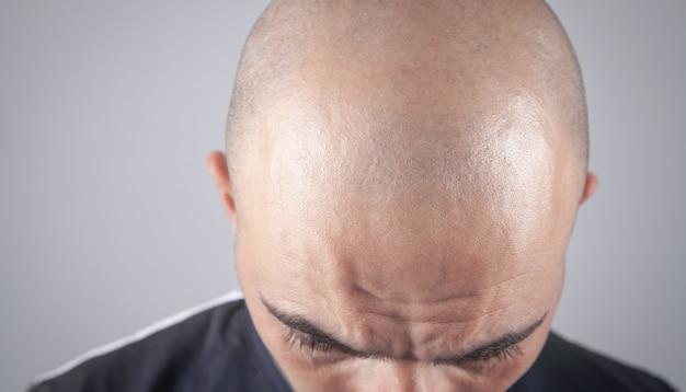 Kaukasische kale man. voor haartransplantatie