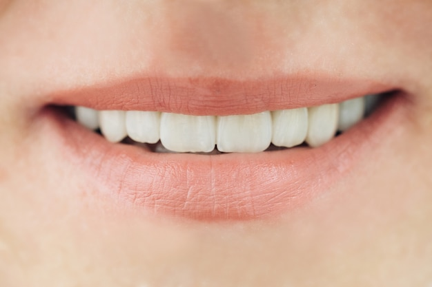Keramische kronen van menselijke tanden close-up macro. het concept esthetische tandheelkunde.