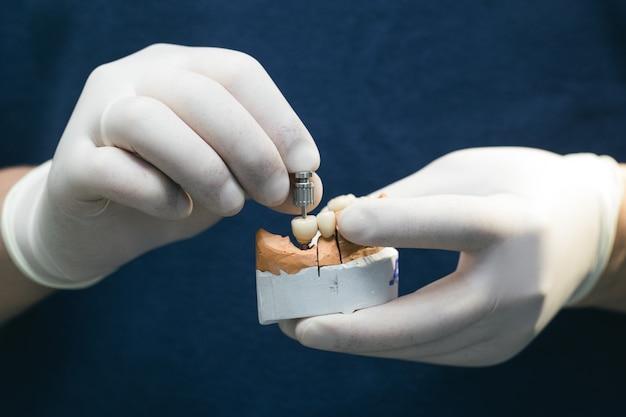 Keramische tanden met het implantaat op een gipsmodel. protheses op tandheelkundige implantaten. concept van orthopedische tandheelkunde. keramische brug op implantaten. de hand van de tandarts houdt een gipsen kaak met tandheelkundige abutments