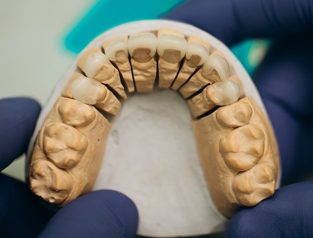 Keramische tanden tandkronen op model. keramische frontfineer.
