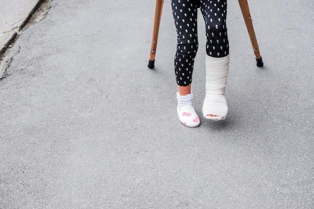 Kind met gebroken been is op krukken op straat. conceptuele foto van een kind met een gebroken been op vakantie, op schoolvakantie. meisje gewond aan voeten heeft verband met krukken op asfalt