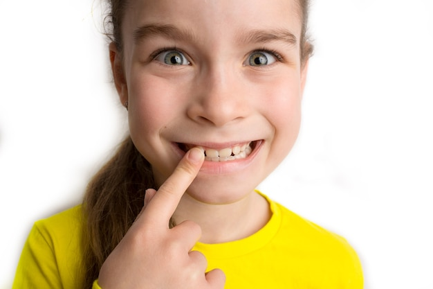 Klein meisje staat op een witte achtergrond met een mooie glimlach, kinderen scheve tanden, pediatrische tandheelkunde. scheve tanden close-up. correctie van malocclusie is vereist. hoge kwaliteit foto