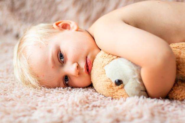 Kleine babyjongen met varicella-virus of waterpokken-bellenuitslag thuis