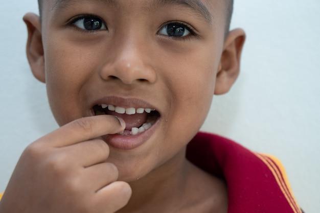 Kleine jongen lachend met gebroken tanden