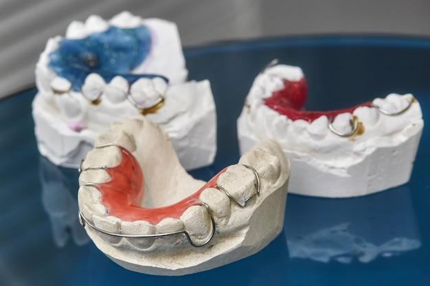 Kleurrijke tandheelkundige beugels of houders voor tanden op glazen wand