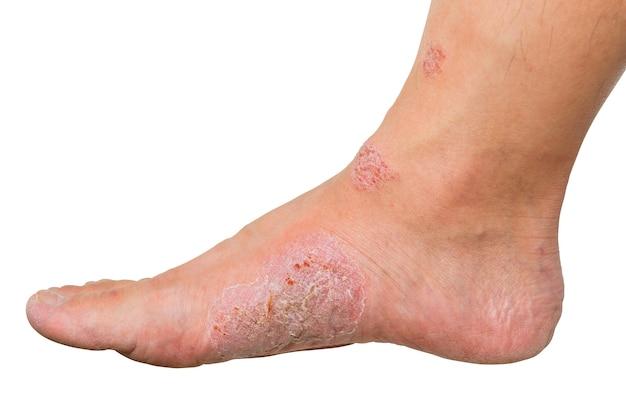 Knip wonden en droge huid op menselijke voet uit