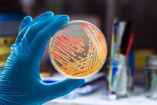 Kolonies bacteriën gramnegatieve bacillen / gram-negatieve cocco-bacillen.