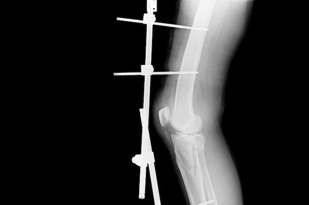 Laat fractuurscheenbeen en kuitbeen zien. röntgenfoto van breukbeen met externe implantaatimplantatie.