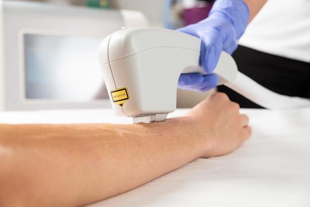 Laser ontharing uit vrouwelijke handen in een schoonheidssalon. close up van laser ontharing procedure op handen van de vrouw.