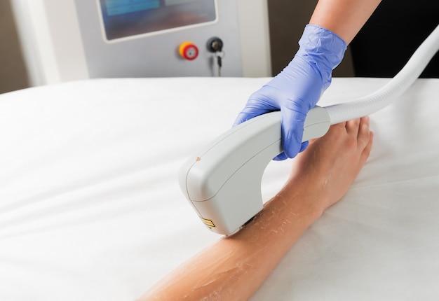 Laser ontharing van handen in een schoonheidssalon met behulp van laser ontharingstechnologie.
