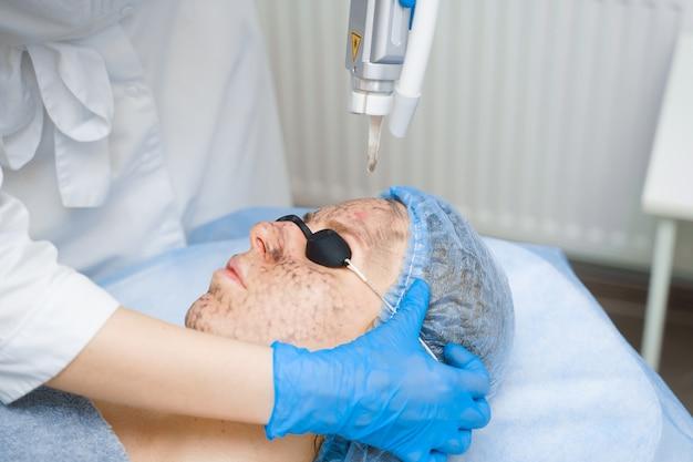 Laserfotoverjonging en carbon peeling van het gezicht voor vrouwen. zwart gezichtsmasker. dermatologie en cosmetologie. met behulp van chirurgische laser.