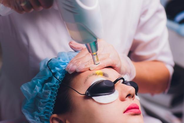 Laserverwijdering van een permanente make-up op een gezicht