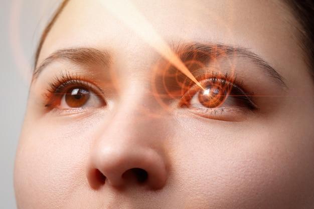 Laserzichtcorrectie. vrouw oog. mensenoog.