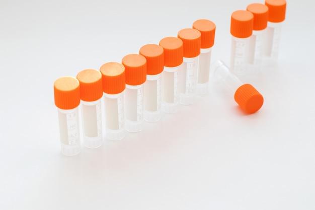 Lege reageerbuizen voor medisch onderzoek en analyse.
