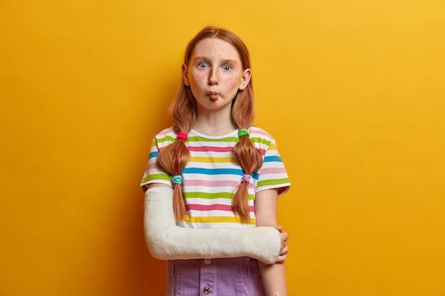 Leuk grappig klein meisje met gepofte ogen, imiteert vis en houdt de lippen gevouwen, heeft een speelse bui, is niet bang om emoties te tonen, dwazen rond, heeft een gebroken arm, draagt casual zomerkleding.