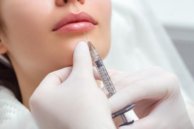 Lipvormcorrectieprocedure in een schoonheidssalon. de specialist geeft een injectie op de lippen van de patiënt. lipvergroting.