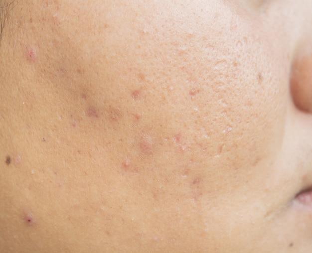 Litteken van acne op gezicht en huidproblemen en poriën bij tieners