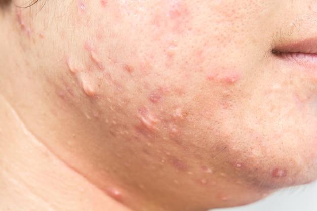Litteken van acne op gezicht