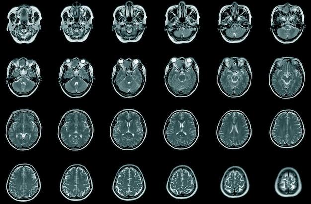 Magnetische resonantie beeldvorming (mri) van de tumor, transversale weergave. een 56-jarige man. gezondheidszorg en medisch concept.