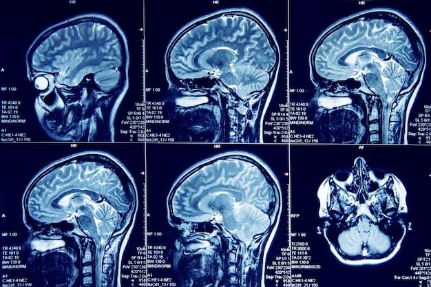 Magnetische resonantie beeldvorming van menselijke hersenen in sagittaal vlak.