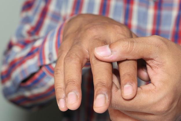 Man die lijden aan pijn in de vinger close-up