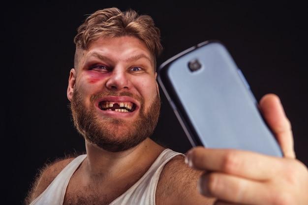 Man met blauwe plek neemt selfie