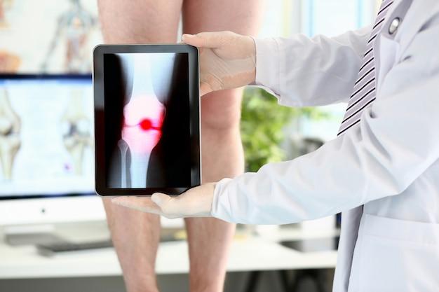 Mannelijke artsenhanden die tabletcomputer houden die xray schot met pijnlijk gebied tonen