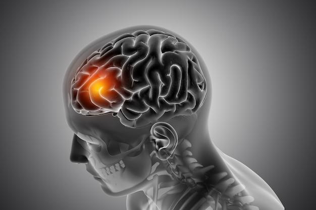 Mannelijke medische figuur met de voorkant van de hersenen gemarkeerd