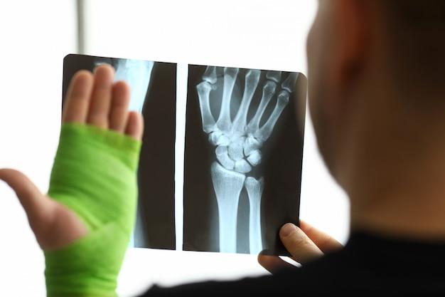 Mannelijke patiënt in de hand houden ct-scan van zijn gebroken arm op afspraak arts