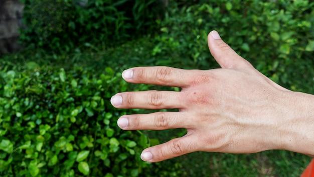 Mannen werden gebeten door een insect.