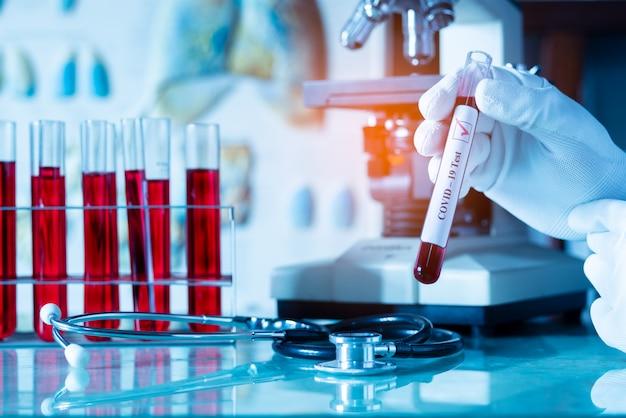 Medisch of wetenschapper of arts met bloedbuis voor covid-19 of ncov coronavirus test positief