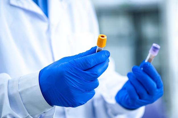 Medisch personeel, laboratoriumassistenten werken met reageerbuizen voor de analyse van biomaterialen in medische laboratoria. handen in rubberen handschoenen houden reageerbuizen vast.